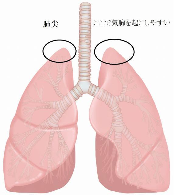 肺尖は肩井(けんせい)というつぼへの刺鍼で起きやすい