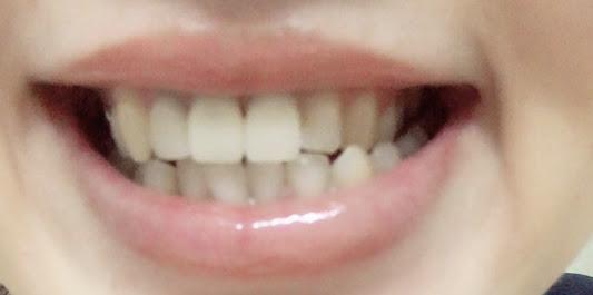f:id:coconecosan:20180412173623j:plain