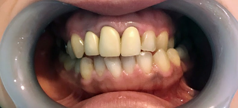 f:id:coconecosan:20181008135639j:plain