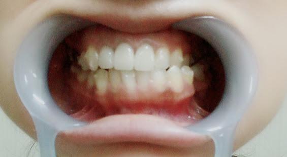 f:id:coconecosan:20181008135927j:plain