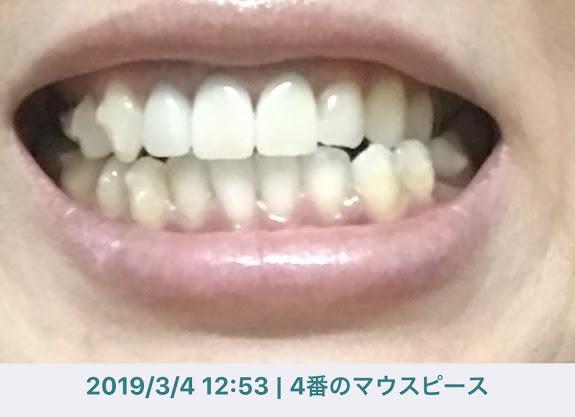f:id:coconecosan:20190304174213j:plain