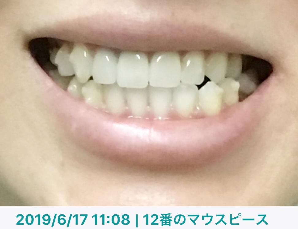 f:id:coconecosan:20190617113556j:plain