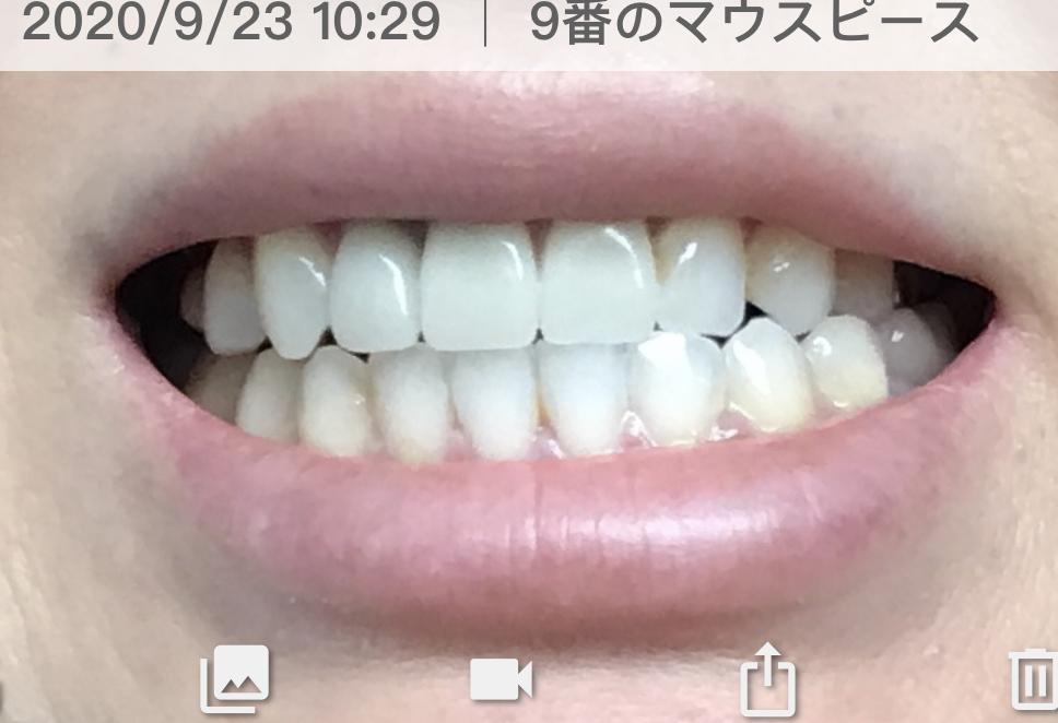 f:id:coconecosan:20200923154006j:plain