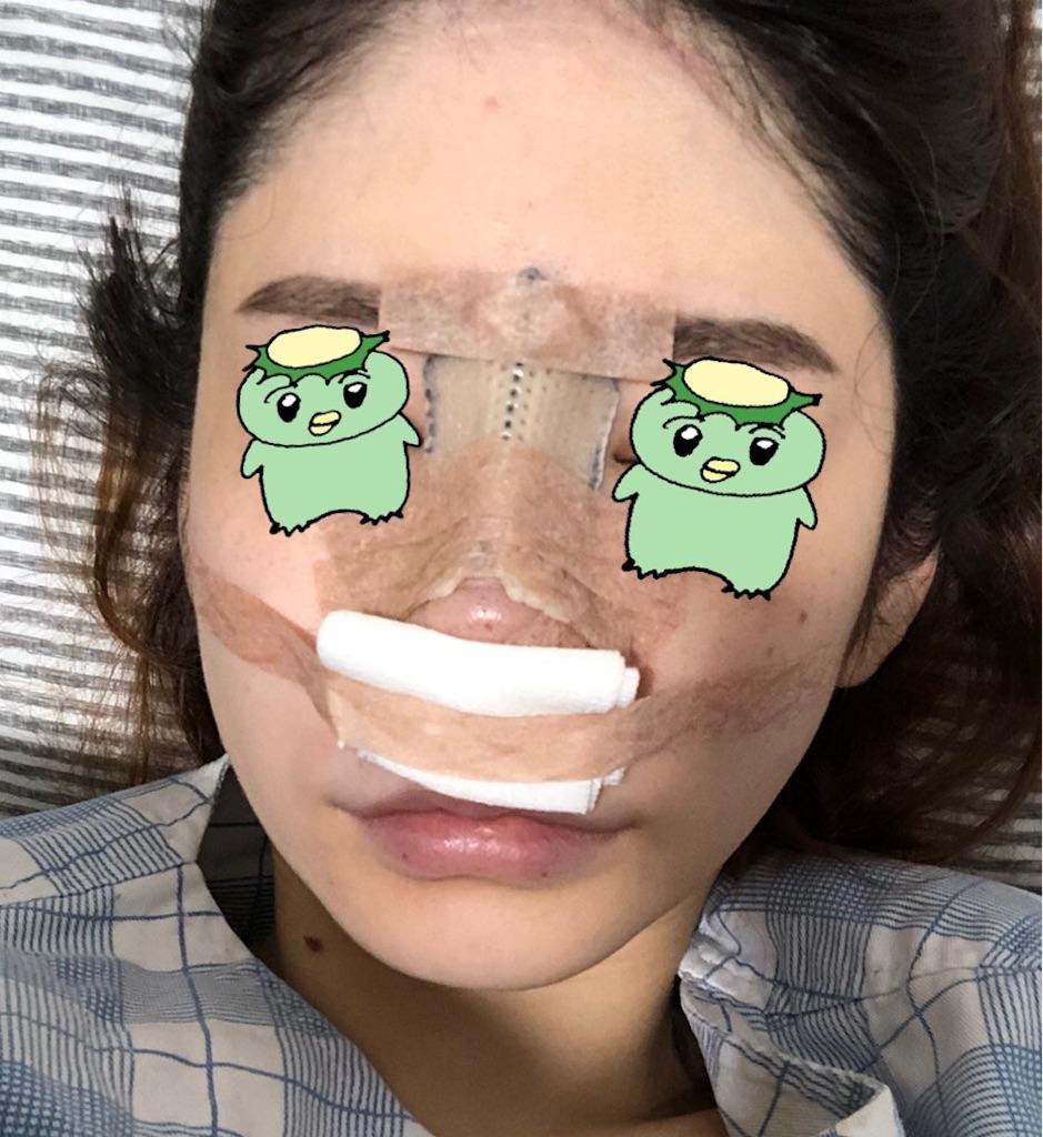 アフター ビフォー 鼻 整形
