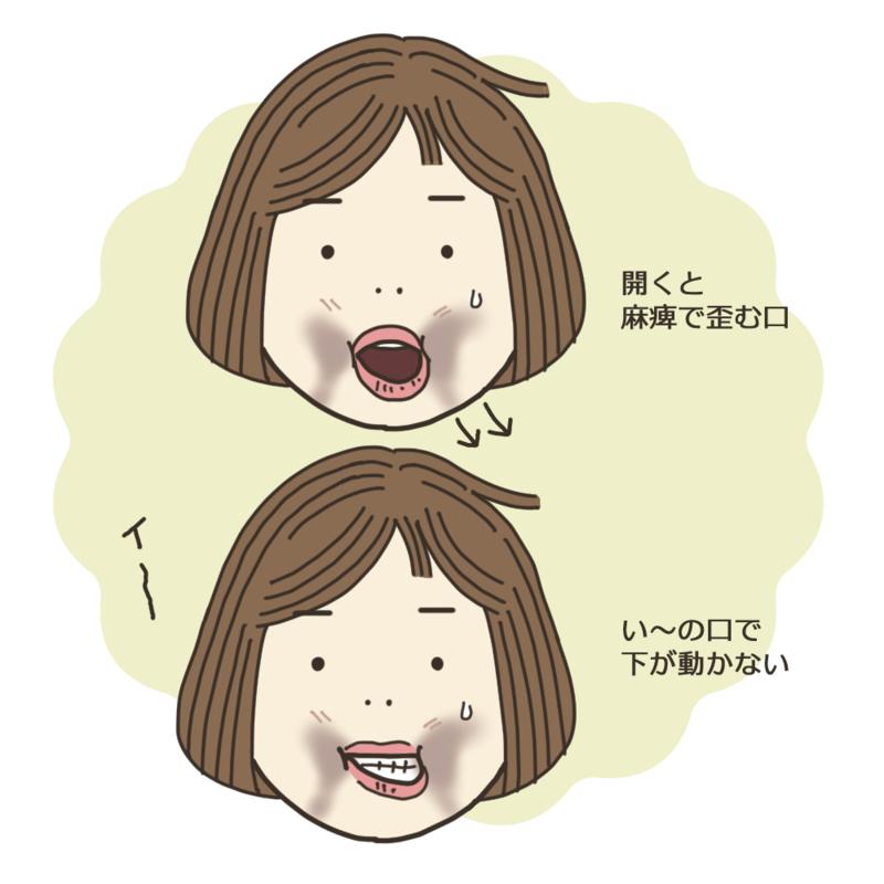 口元の麻痺