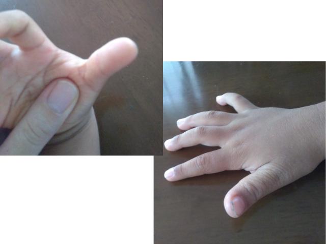顔を描いてから10日後頃の指