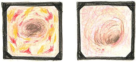 潰瘍性大腸炎の内視鏡画像