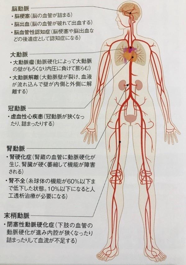 血管事故イメージ