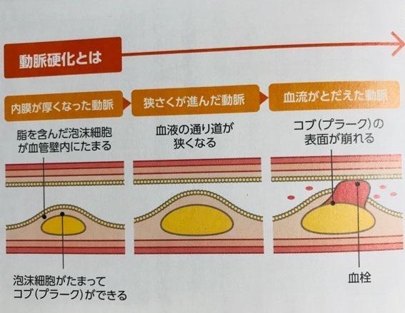 動脈硬化とはイメージ
