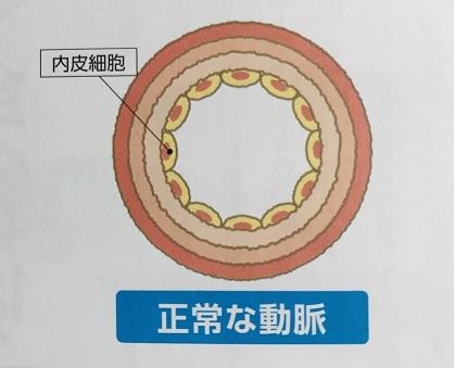 動脈イメージ