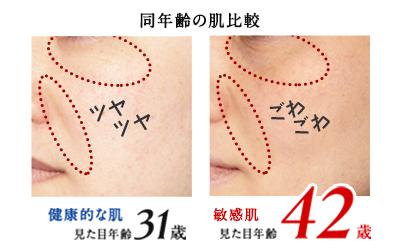 敏感肌と健康肌の見た目年齢の比較画像