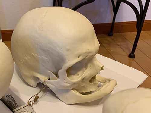 f:id:craniofacial:20190212200639j:plain