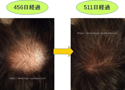 AGA治療経過(7~8月)