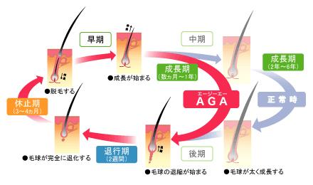 AGAのヘアサイクルの違い