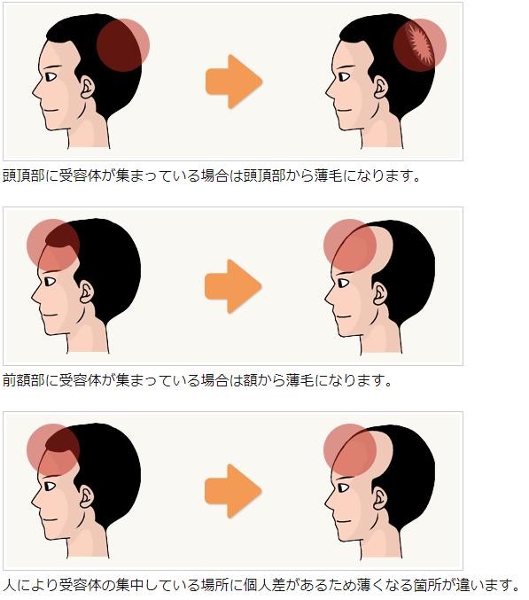 受容体とハゲ方