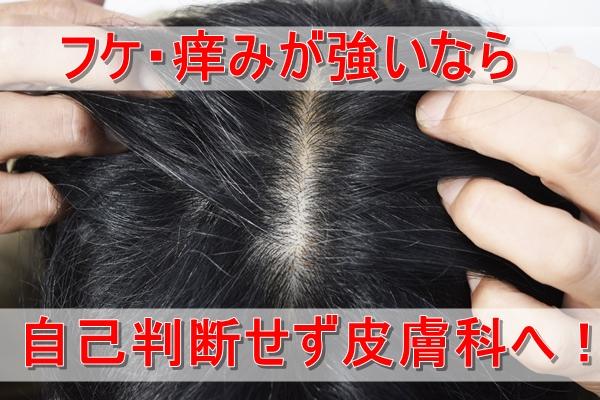 男性の頭皮
