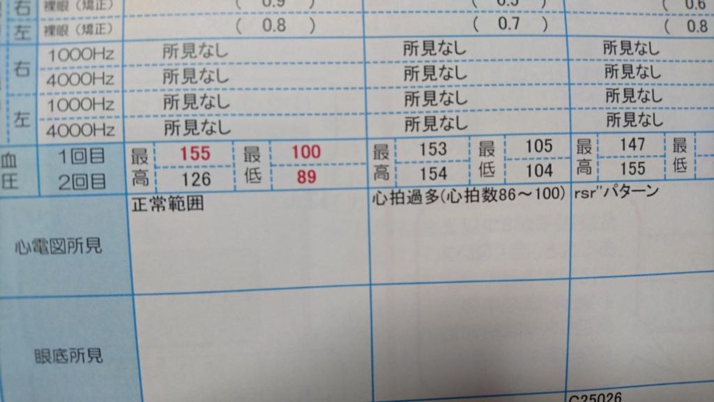 f:id:daikonnorosi710:20160613191119j:plain