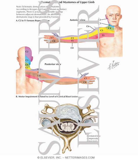 Icd 10 Code Spinal Stenosis Cervical Place