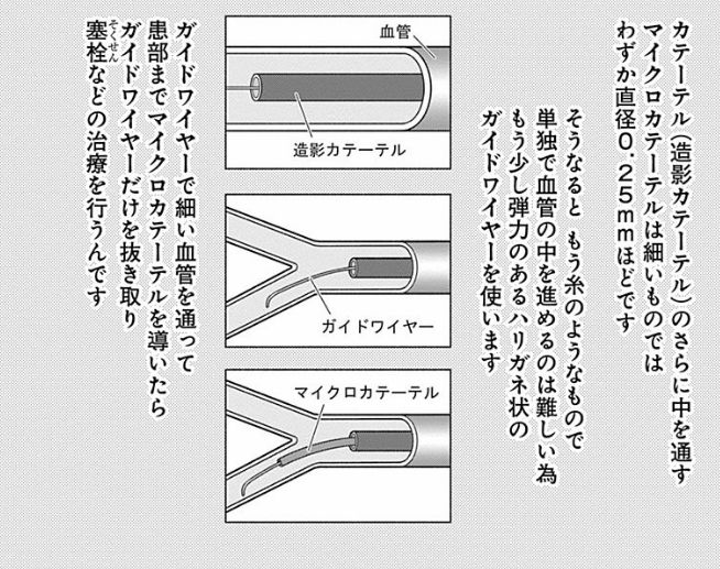f:id:daiouoka:20180816223226j:plain
