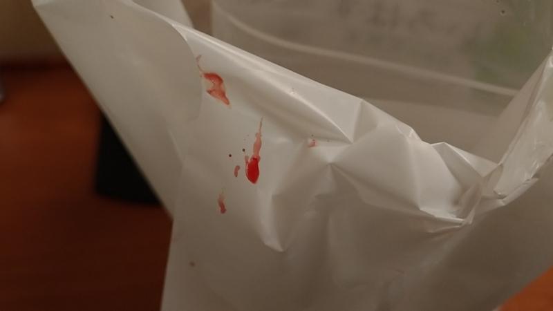 鮮血が付着したコンビニ袋