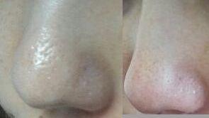 毛穴の開き 改善