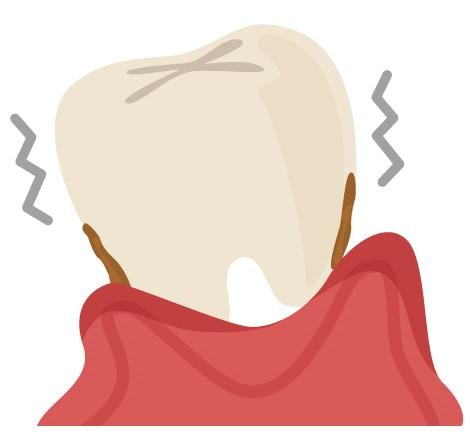 歯周病の歯と歯茎