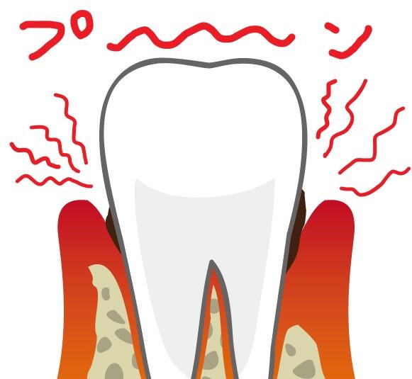 歯周ポケットから悪臭ガスが発生しているイラスト