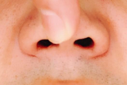 鼻先を指で押し上げている様子