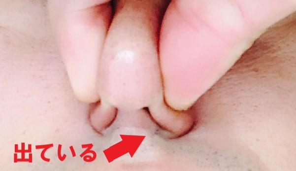 人差し指と親指で鼻をつまんでいる様子