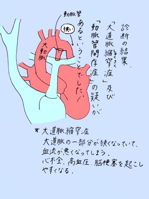大動脈縮窄症
