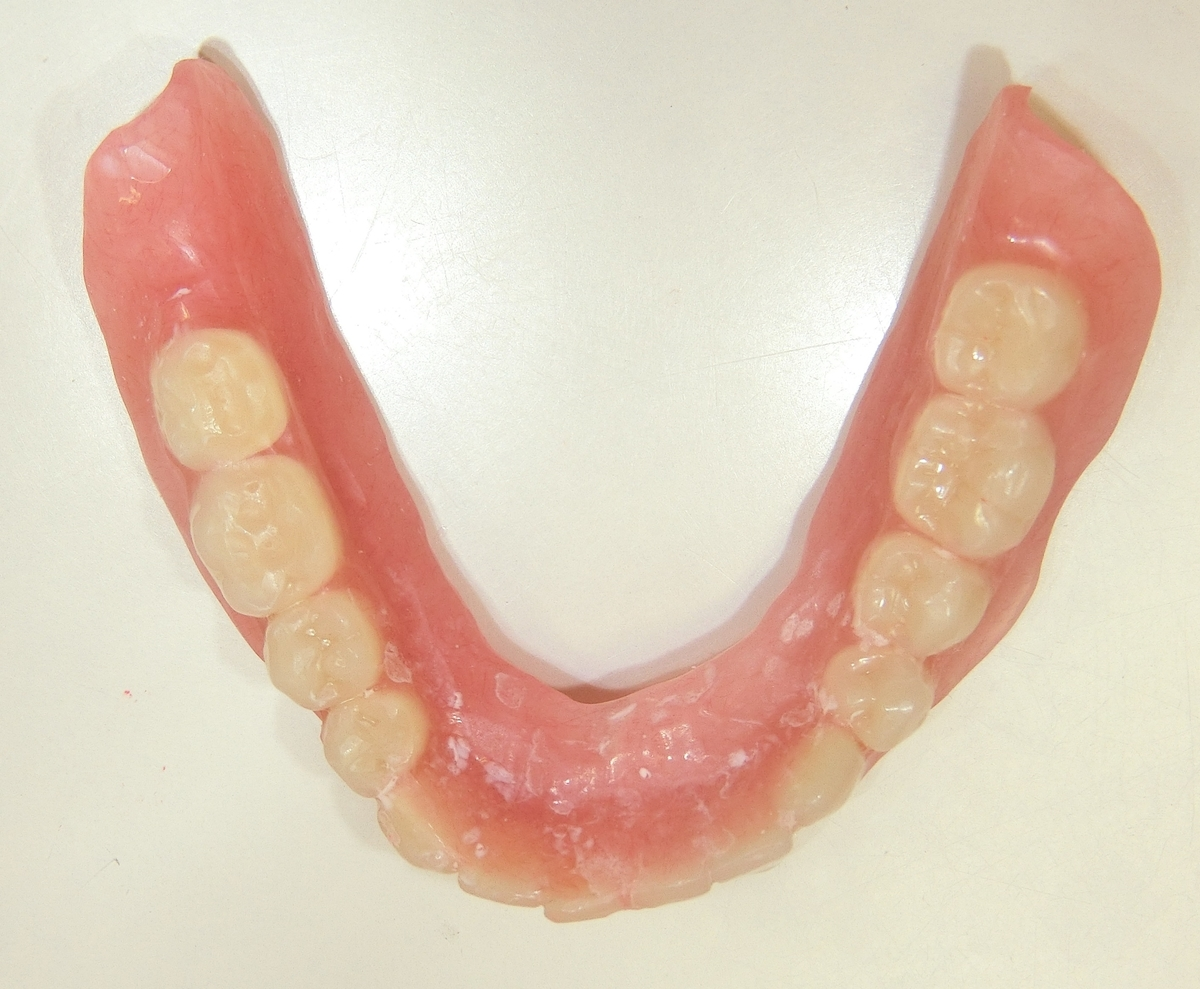 f:id:dentalbooks:20190710184514j:plain