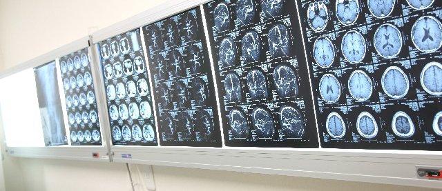 脳神経科の看護師