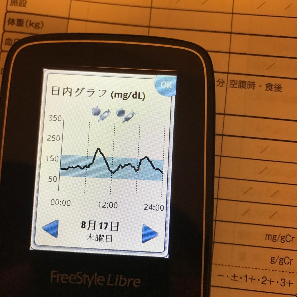 f:id:diabetesian:20170821093619j:plain