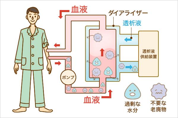 人工透析の仕組み