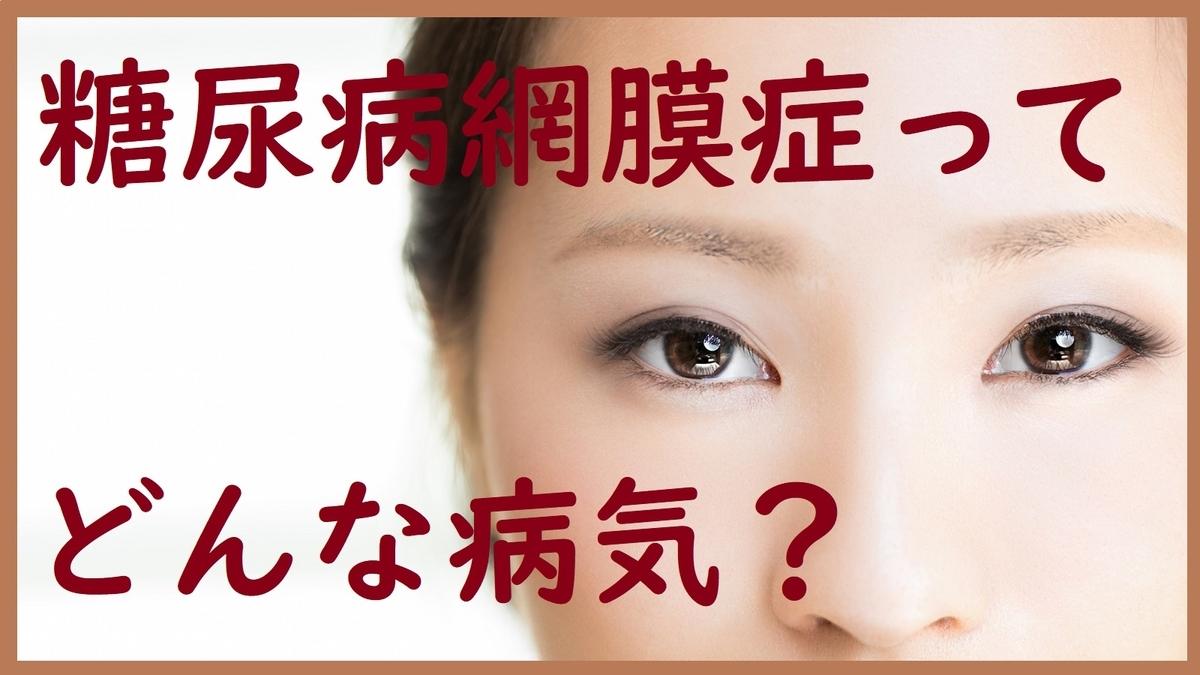 f:id:dm_yosshie:20200723085549j:plain