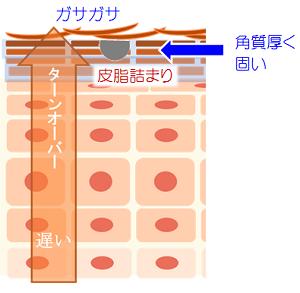 f:id:dobokutanuki:20180121103919p:plain