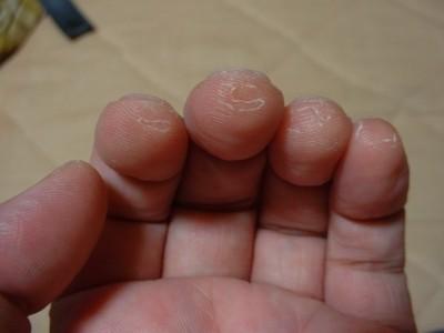 むける 指先 の 皮 が