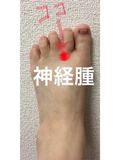 f:id:dokiwaku_everyday:20190823211702j:image