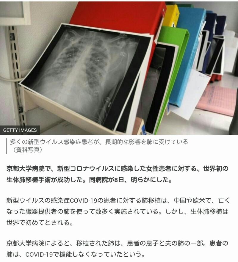 f:id:dr-yokohamaner:20210430122452j:plain