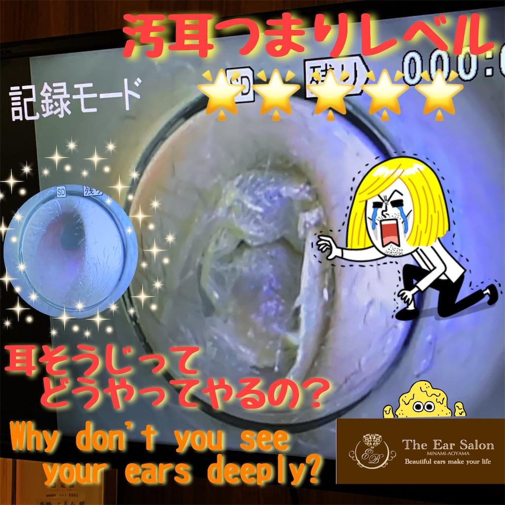 f:id:earwax-cleaning-mimisoji:20200307110820j:image
