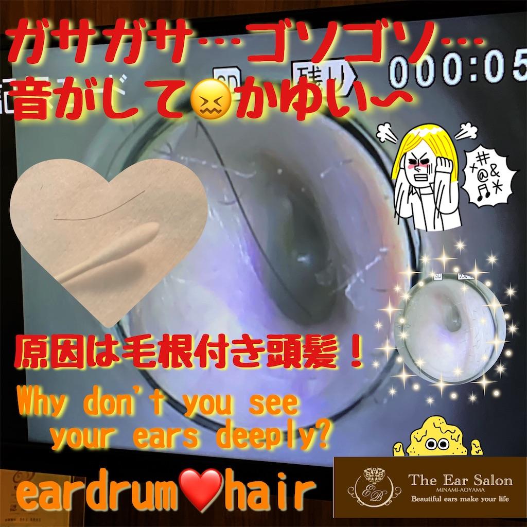 f:id:earwax-cleaning-mimisoji:20200308153440j:image