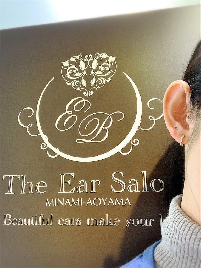 f:id:earwax-cleaning-mimisoji:20200316223842j:image