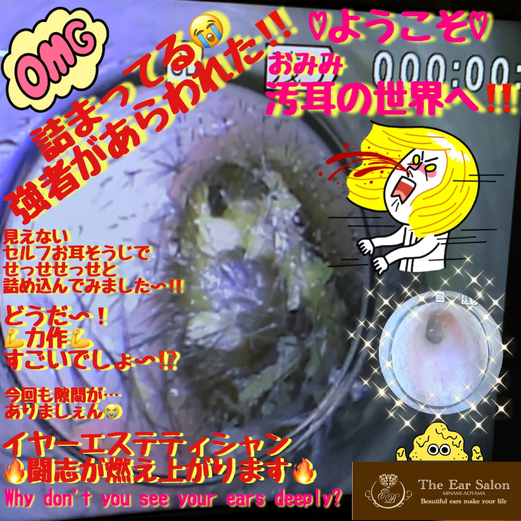 f:id:earwax-cleaning-mimisoji:20200329213111p:image