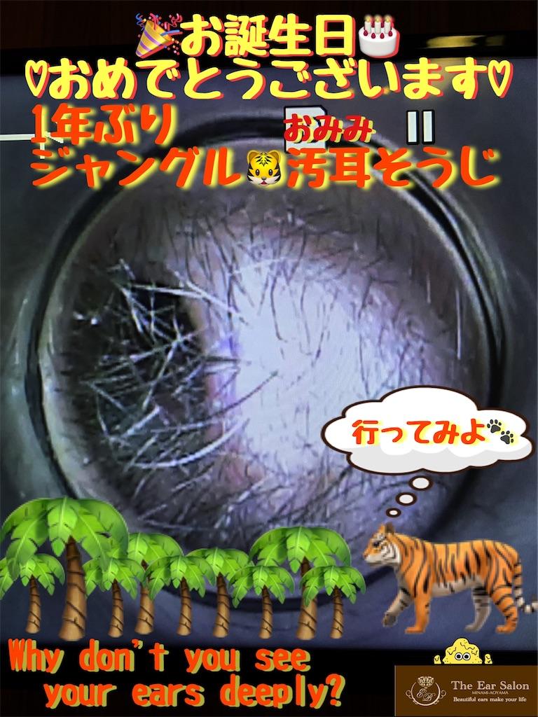 f:id:earwax-cleaning-mimisoji:20200406135601j:image