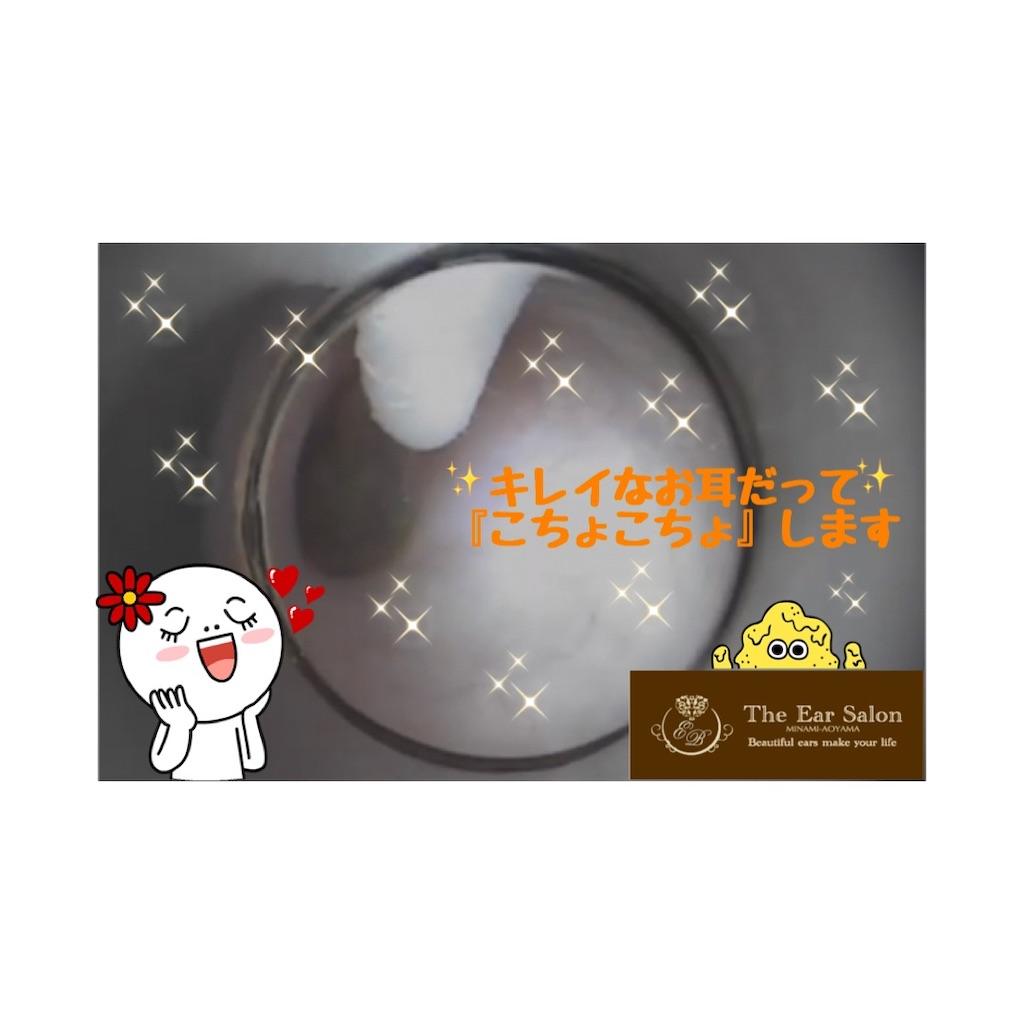 f:id:earwax-cleaning-mimisoji:20200420154408j:image