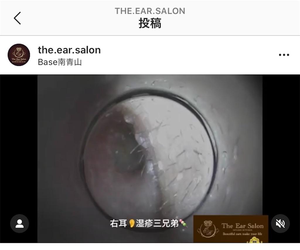 f:id:earwax-cleaning-mimisoji:20200721111729j:image