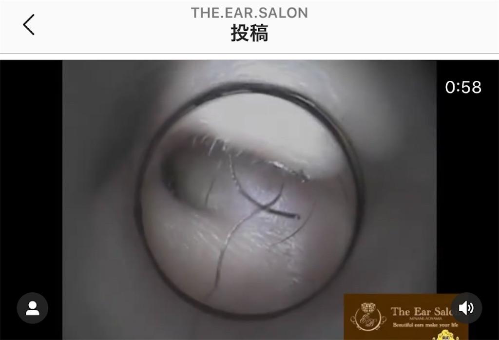 f:id:earwax-cleaning-mimisoji:20200807113227j:image