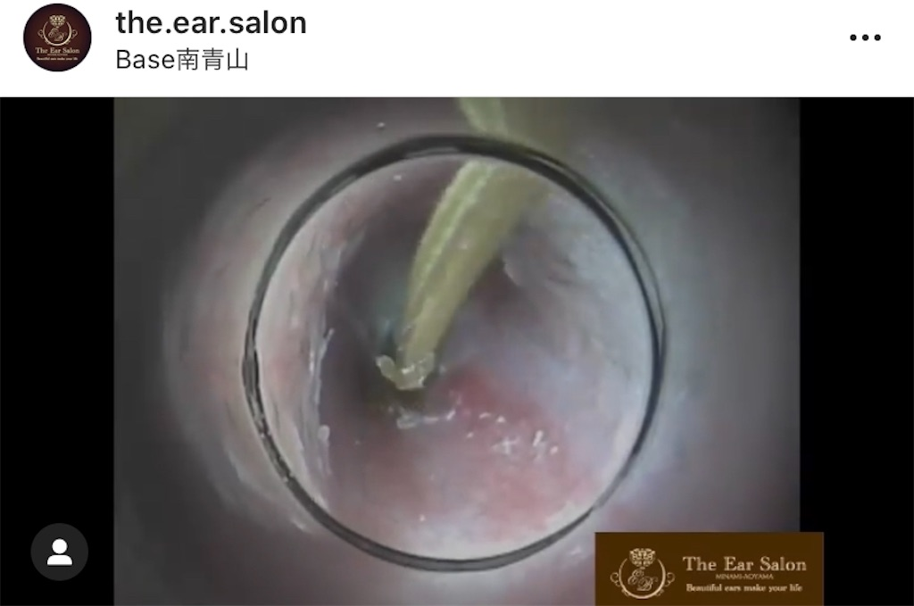 f:id:earwax-cleaning-mimisoji:20200826103935j:image