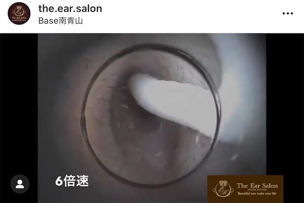 f:id:earwax-cleaning-mimisoji:20200830230325j:image