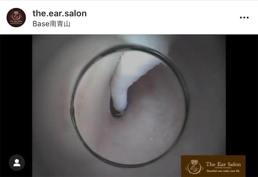 f:id:earwax-cleaning-mimisoji:20200907151537j:image